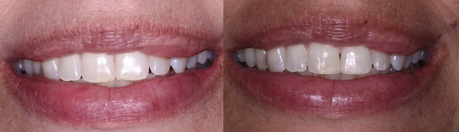 Stephanie - Williams Dentistry in Asheboro