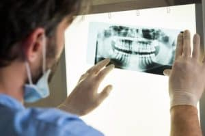 male dentist examining dental x-ray